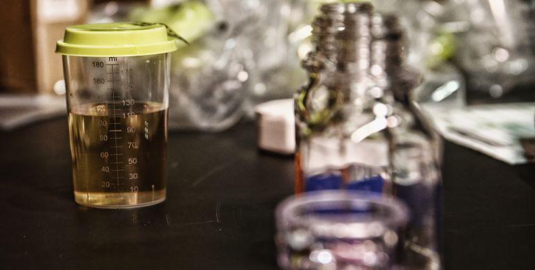 AMA desarrolla nuevos métodos para detectar el dopaje